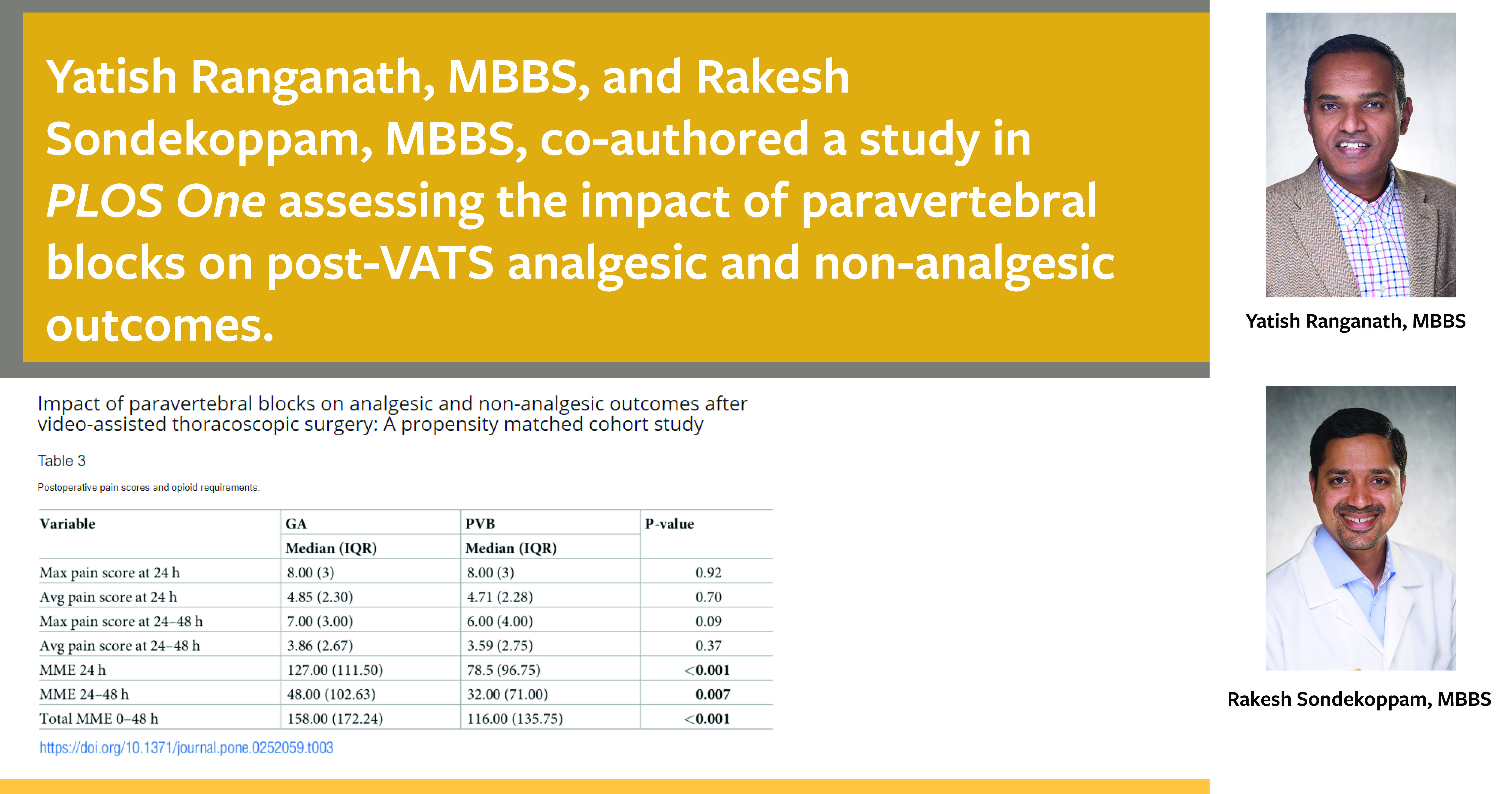 Drs. Ranganath and Sondekoppam published an article on the impact of paravertebral blocks on VATS outcomes