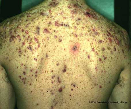 cc2c75b544d2 Acne Conglobata   Department of Dermatology