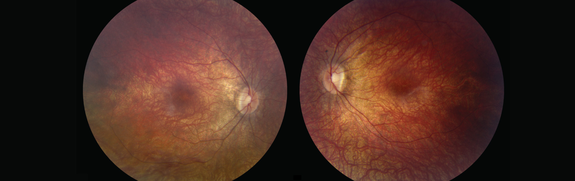 FDA panel approves gene therapy to treat form of blindness