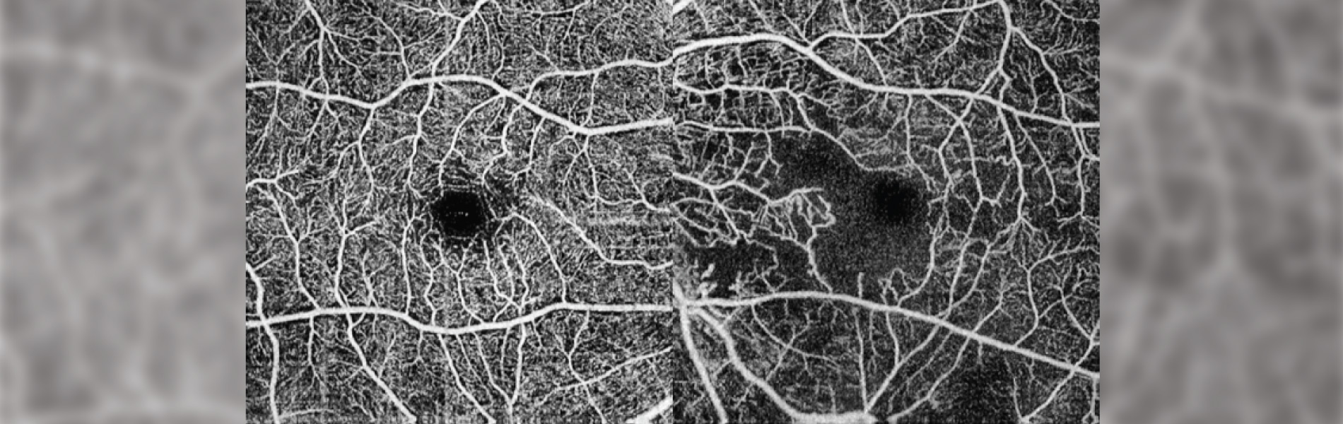 Two optical coherence tomography angiography scans show normal capillary vascular density in the macula of the eye
