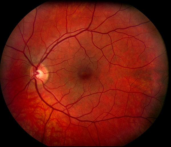 Color Fundus Photography