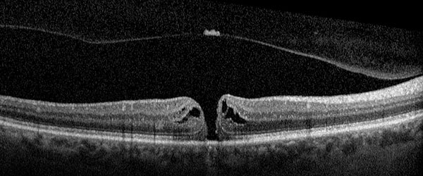 OCT, Macular Hole