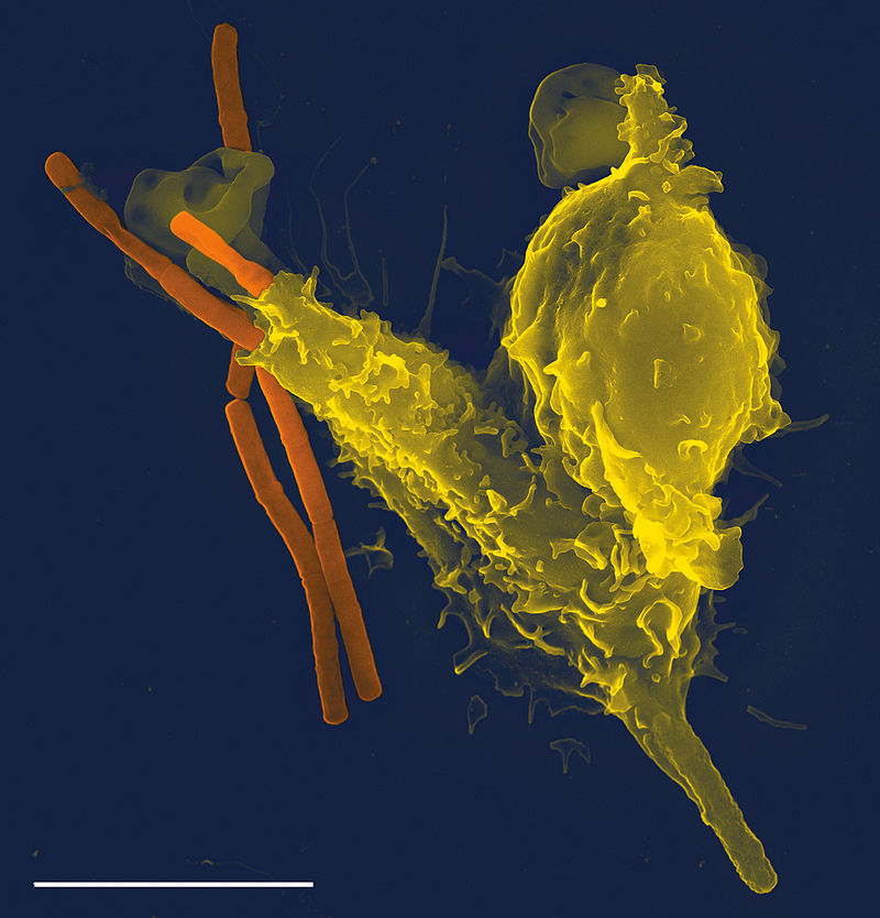 Neutrophil_with_anthrax from CC 2.5 Wikipedia
