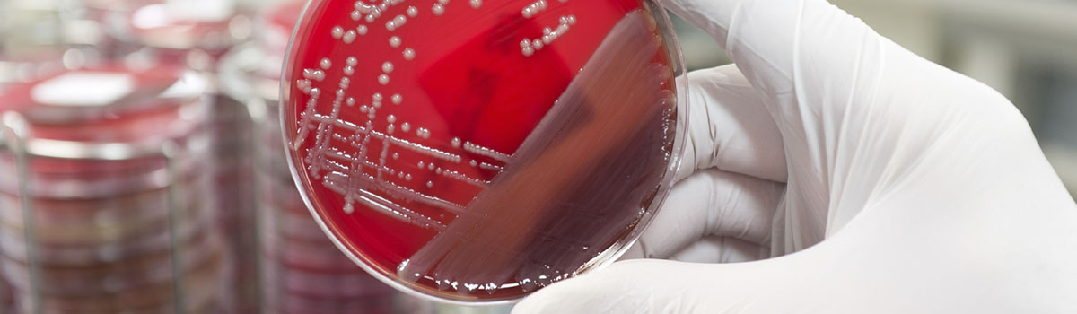 Banner: Positive Collateral Damage in MRSA Fight