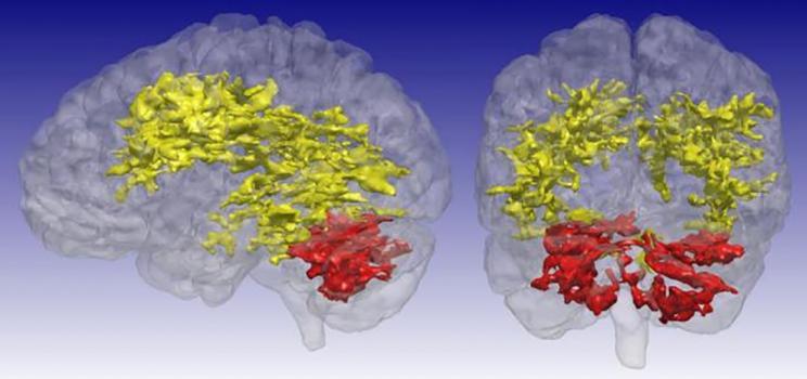Bipolar T1rho MRI