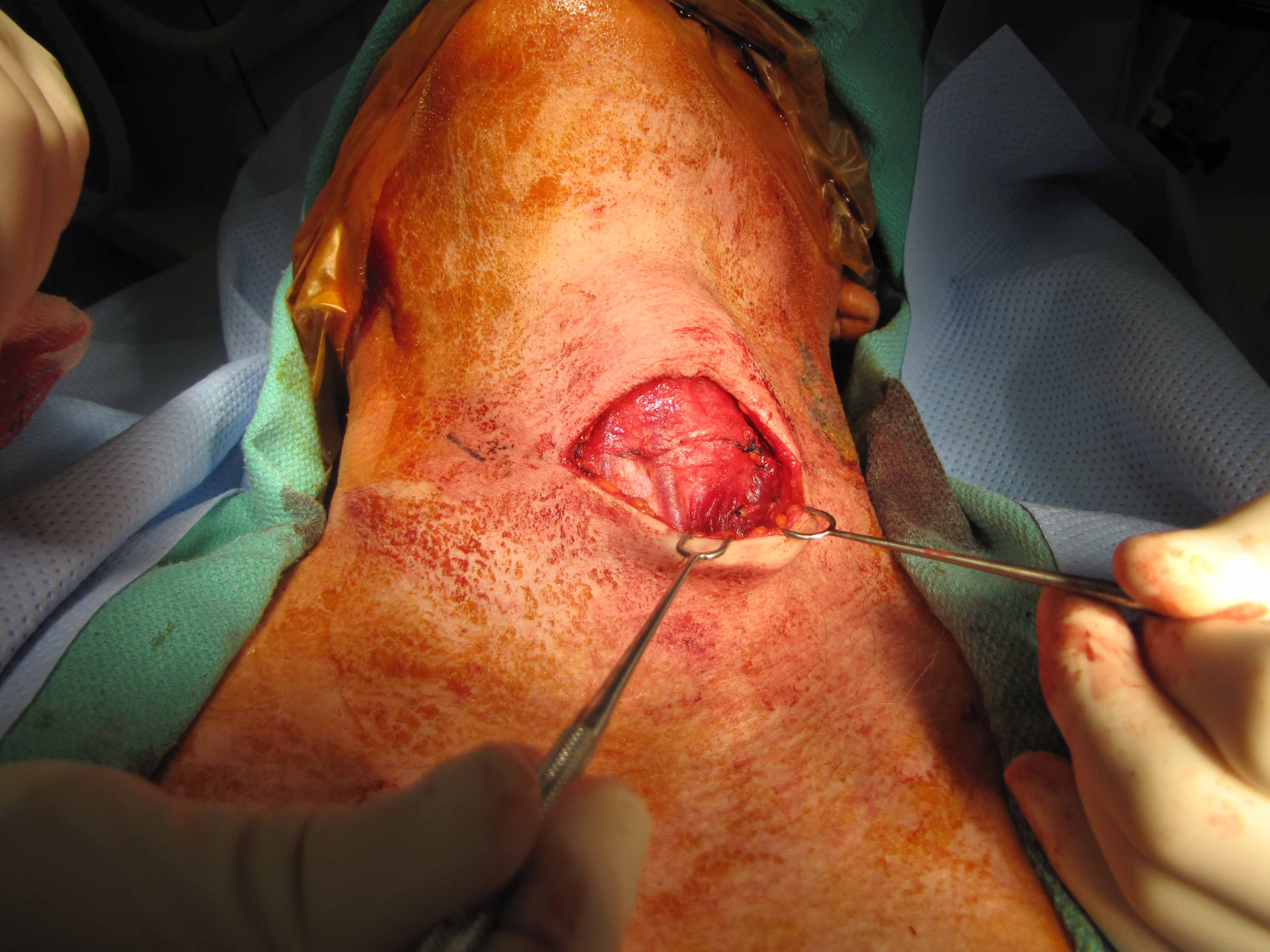 Case Example of Thyroglossal duct cyst excision standard approach ...