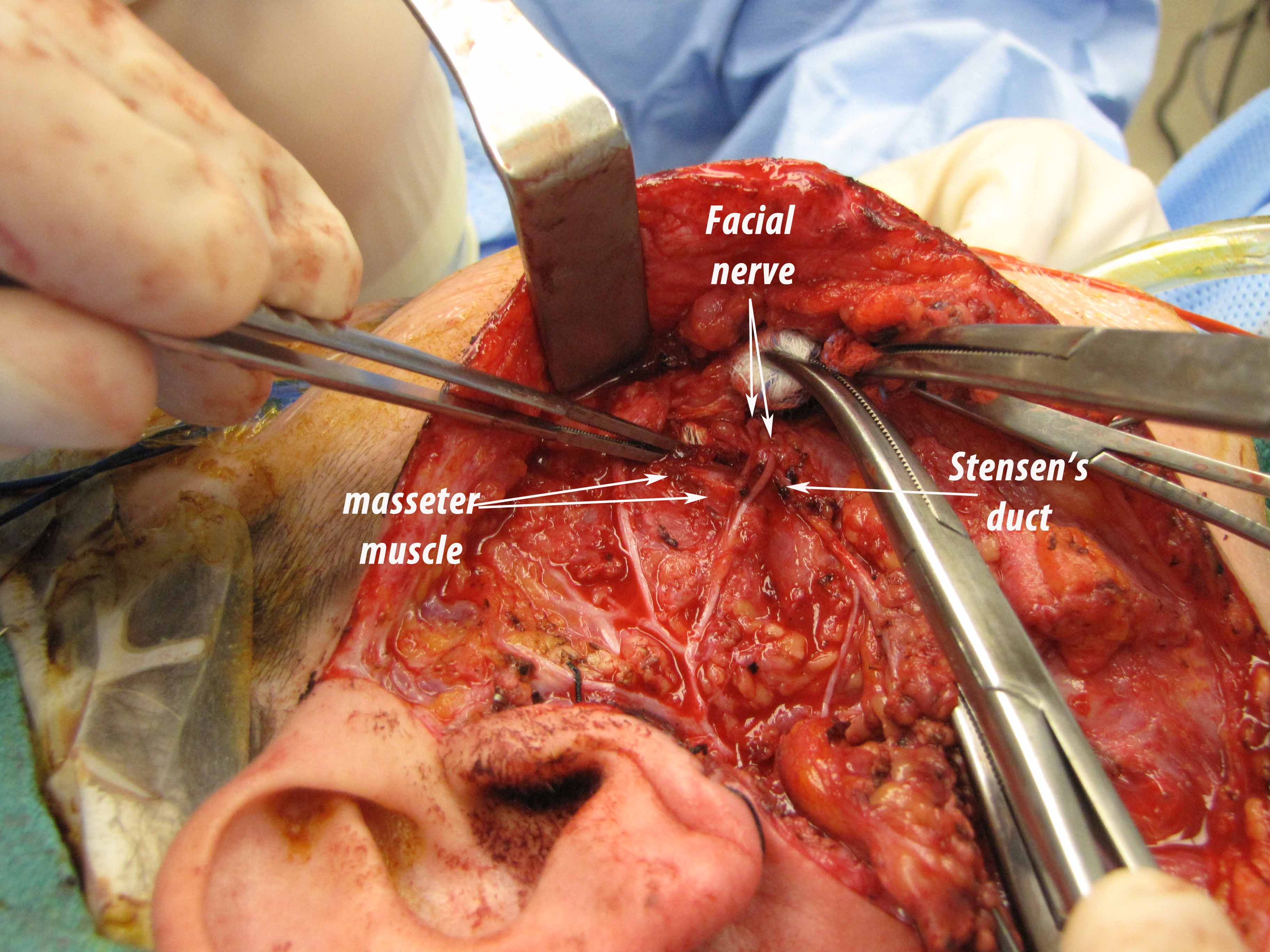 Parotid Duct Anatomy Case Example Resection of Recurrent Accessory ...