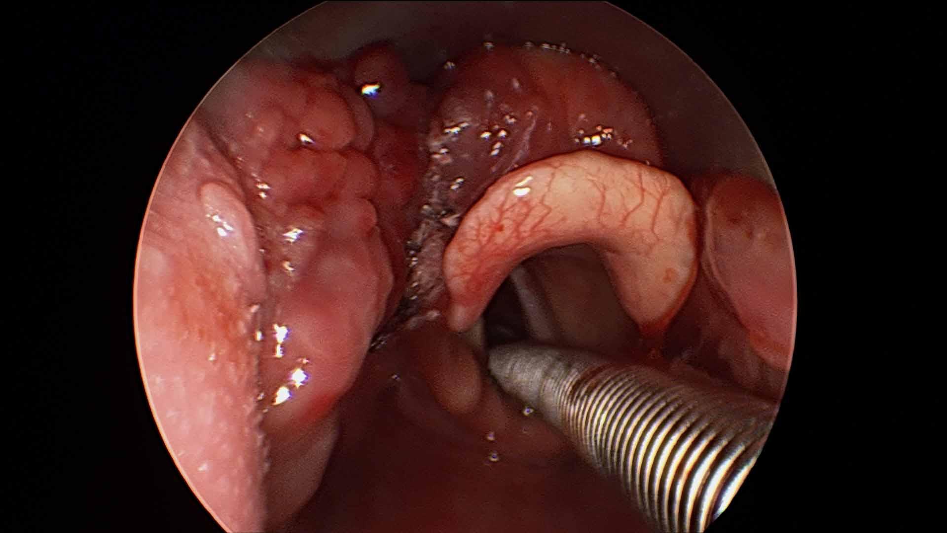 Vallecular Cyst Unusual Cause Of Lump In Throat Sensation Globus