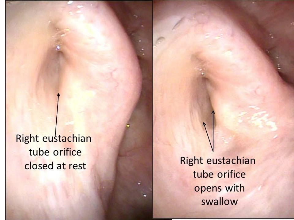 Patulous Eustachian Tube - Management of the Symptom of Autophony ...