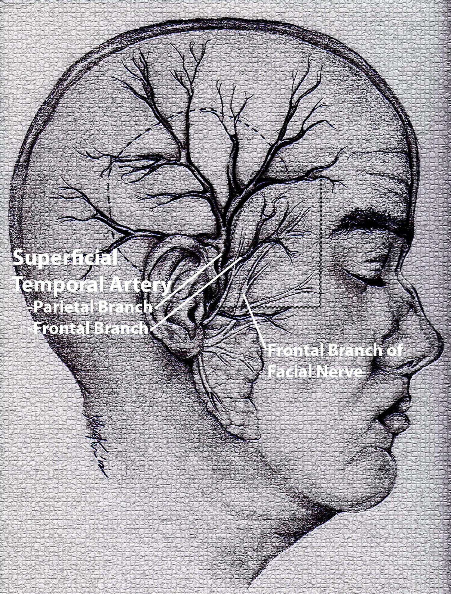 Temporal Arteritis aka Giant Cell Arteritis and Temporal Artery ...