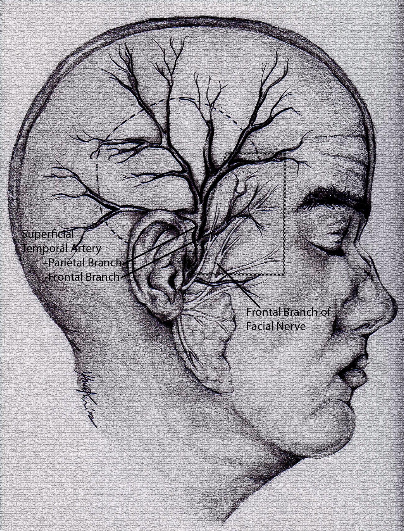 Temporal Arteritis Aka Giant Cell Arteritis And Temporal Artery
