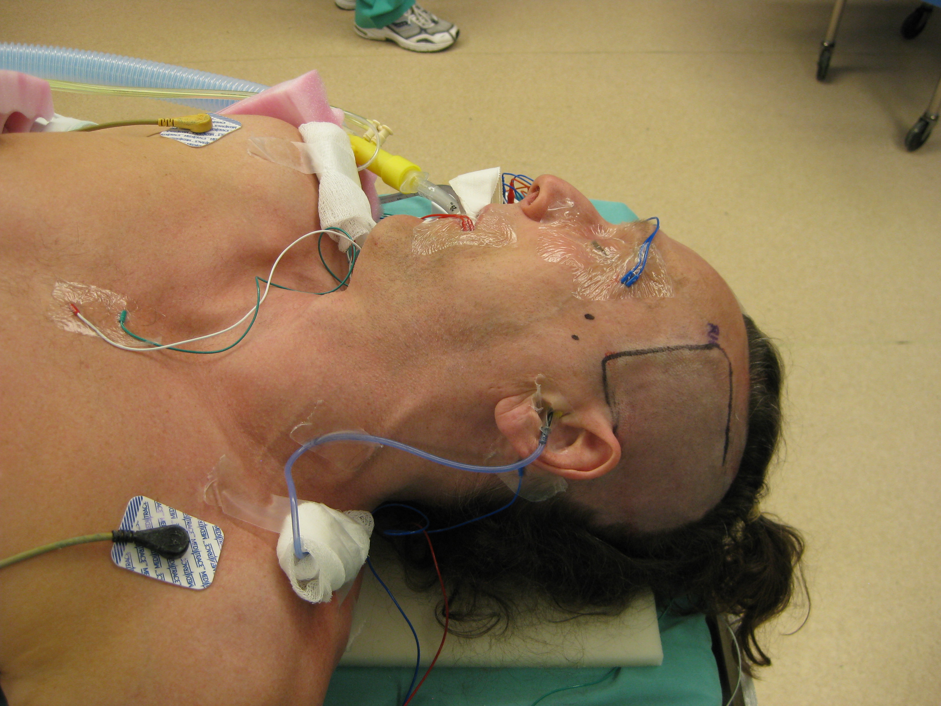 Middle Cranial Fossa Approach to the Internal Auditory Canal ...