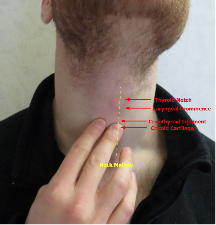 Lump In Throat Throat Fullness Globus Syndrome Globus Sensation Globus Hystericus Globus Pharyngeus Iowa Head And Neck Protocols