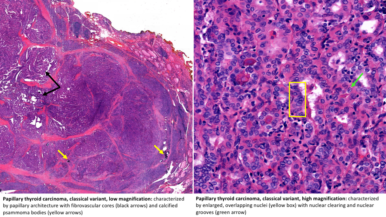 what is papillary thyroid carcinoma
