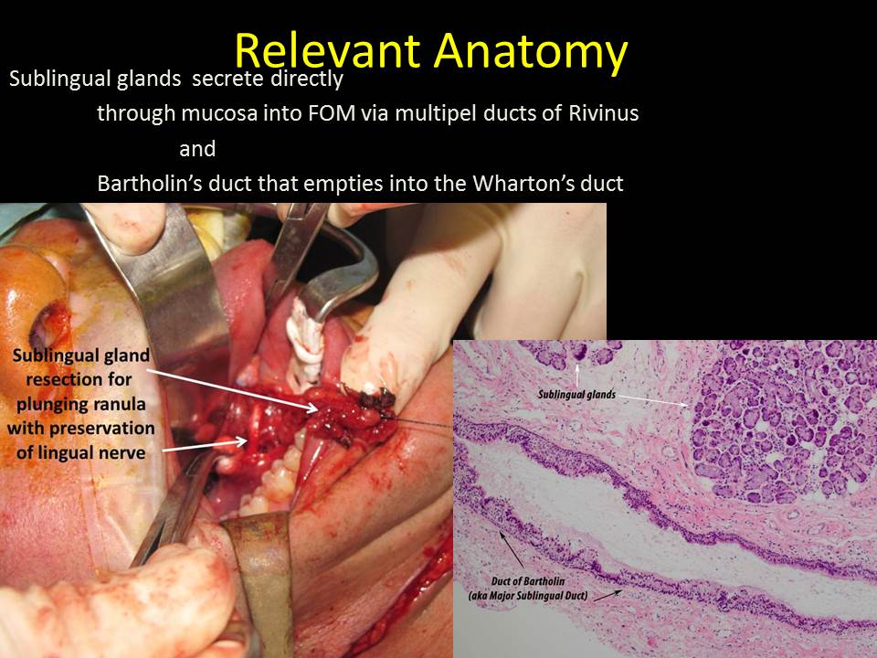 Relevant Anatomy For Sialendoscopy April 16 2015 Columbia Missouri