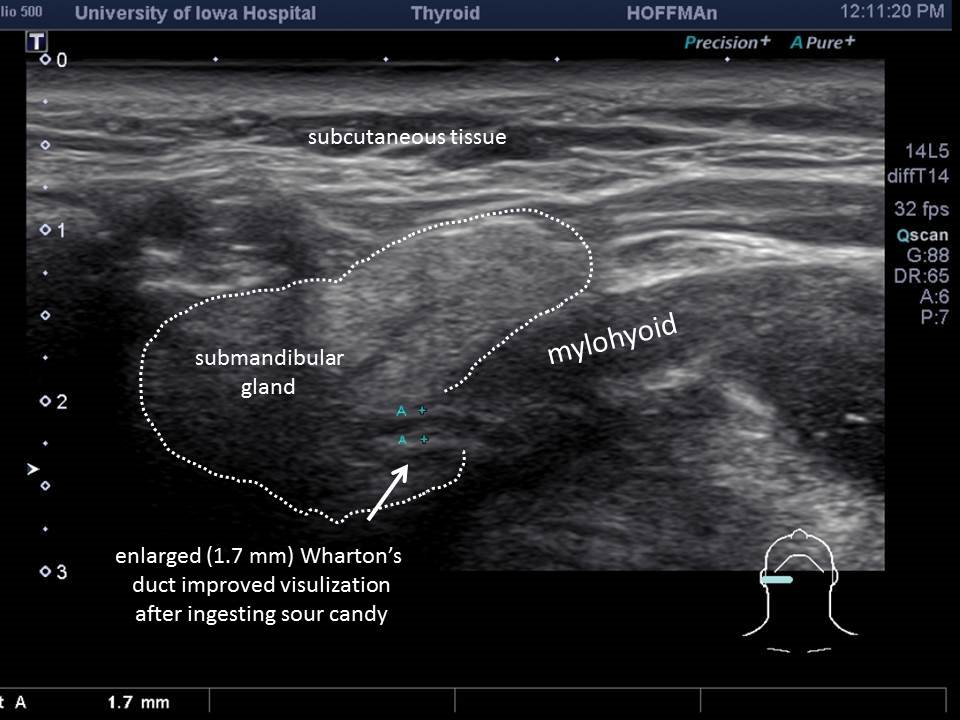 ultrasound how to read salivary glands