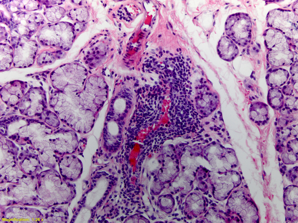 Lip Biopsy Of Minor Salivary Gland Histopathology For Sjogren U0026 39 S Syndrome  Sjogren    Sjogrens