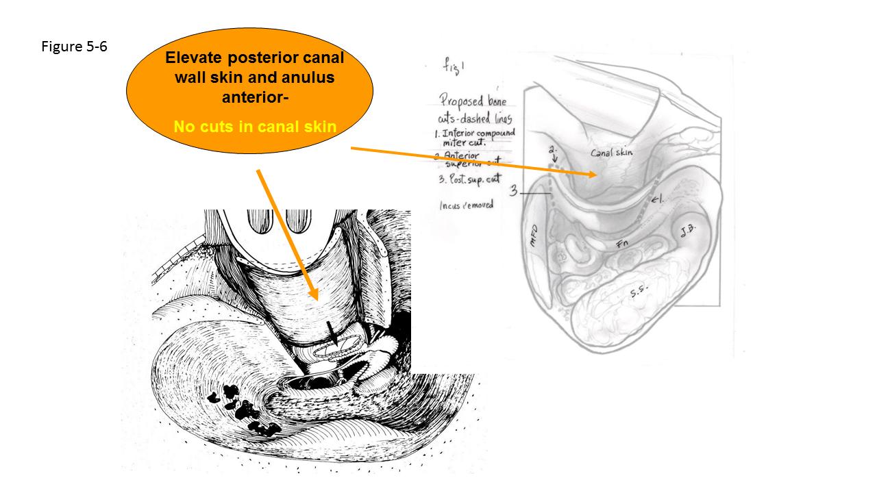 Canal Wall Reconstruction (Mastoidectomy) | Iowa Head and Neck Protocols