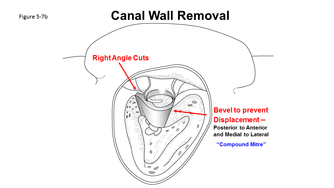 Canal Wall Reconstruction Mastoidectomy Iowa Head And Neck Protocols