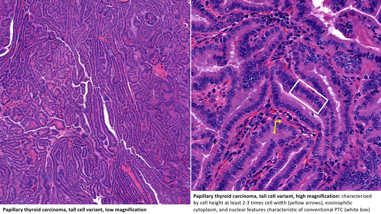 Variants Of Papillary Thyroid Carcinoma Microcarcinoma