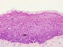 Squamous papilloma with dysplasia, Squamous papilloma dysplasia
