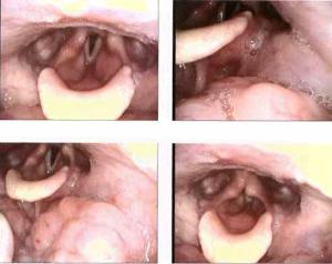 Vallecular Cyst Unusual cause of lump in throat sensation