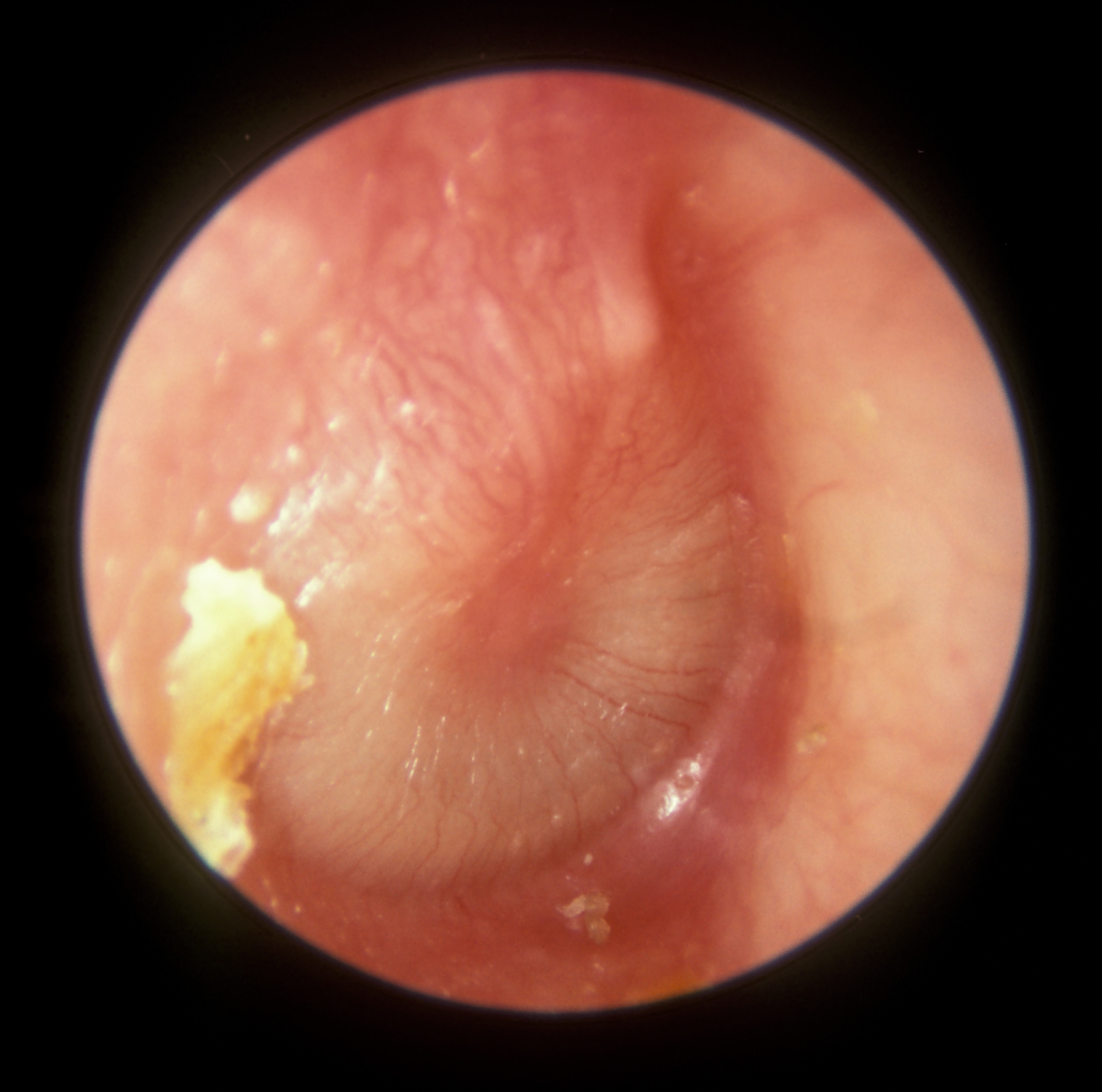 acute otitis media in adult
