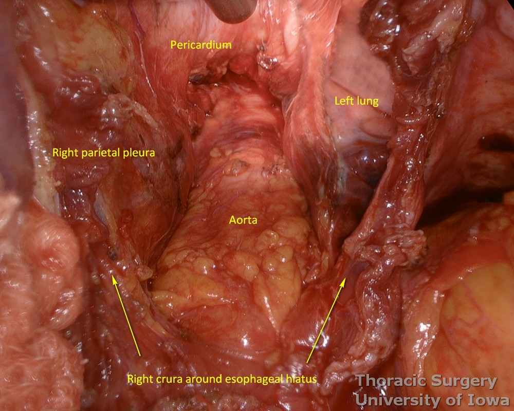 exposure of the posterior mediastinum during esophagectomy  dissection and hemostasis check