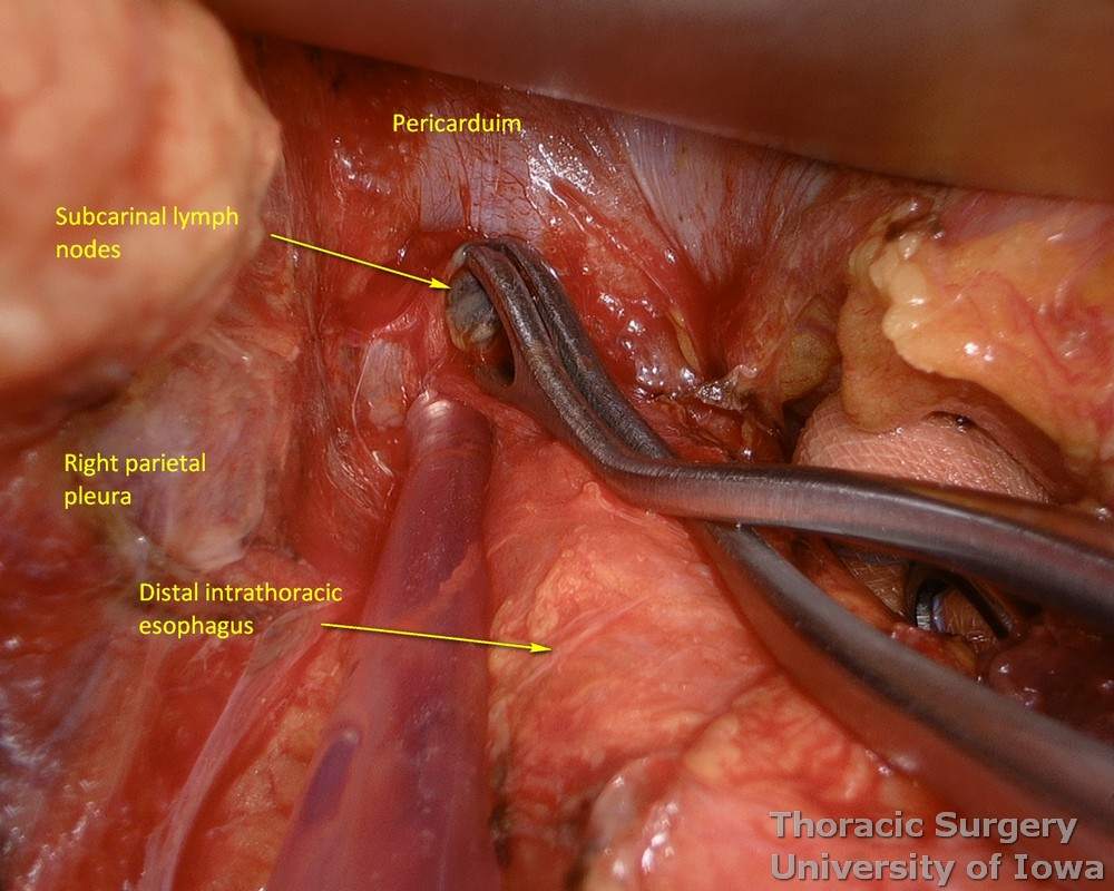 Subcarinal lymph nodes are resected during esophagectomy with limited uses of energy devices