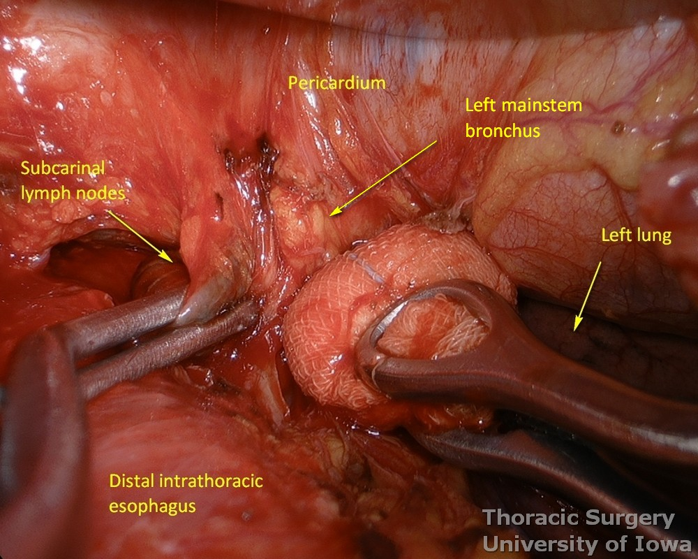Subcarinal lymph nodes resected under direct vision