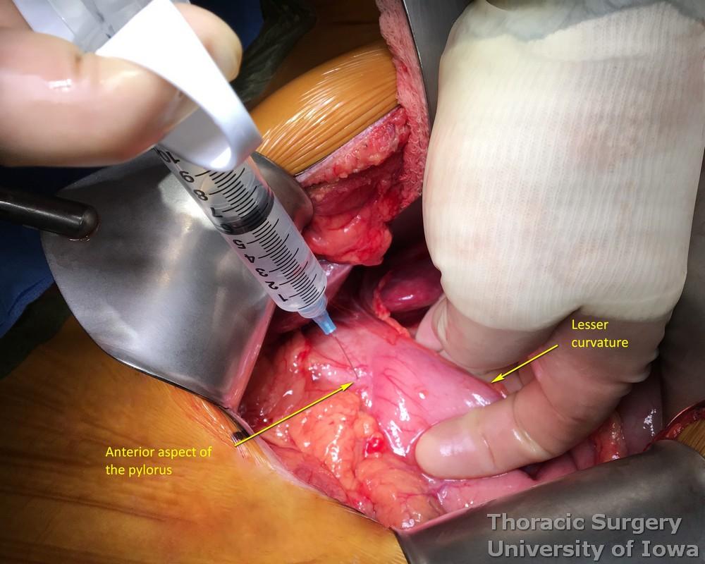 Botox injection into pylorus anteriorly during esophagectomy