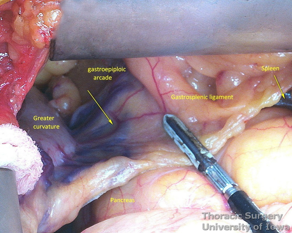 ivision of gastrocolic and gastrosplenic ligaments and preservation of the right gastroepiploic arcade