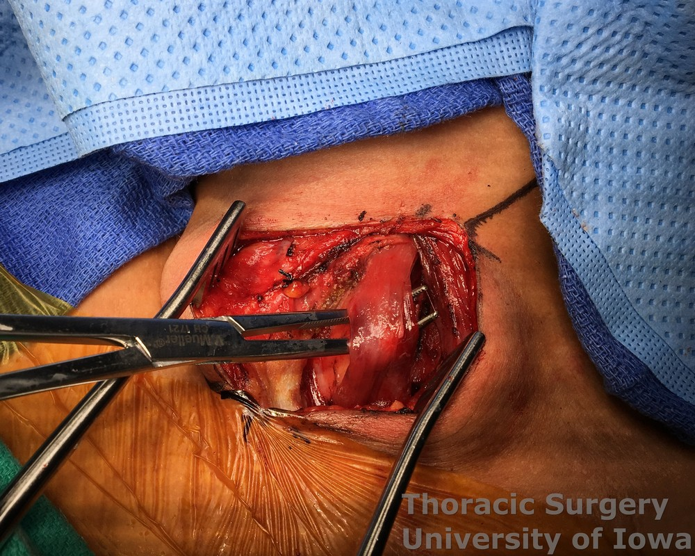 Esophagectomy for esophageal carcinoma cervical gastroesophageal anastomosis Strap muscles are dissected and divided
