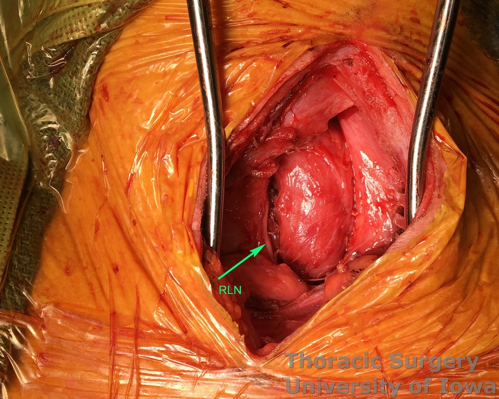 Esophagectomy for esophageal carcinoma cervical gastro esophageal anastomosis the supporting sponge is removed and anastomosis is allowed to retract behind manubrium