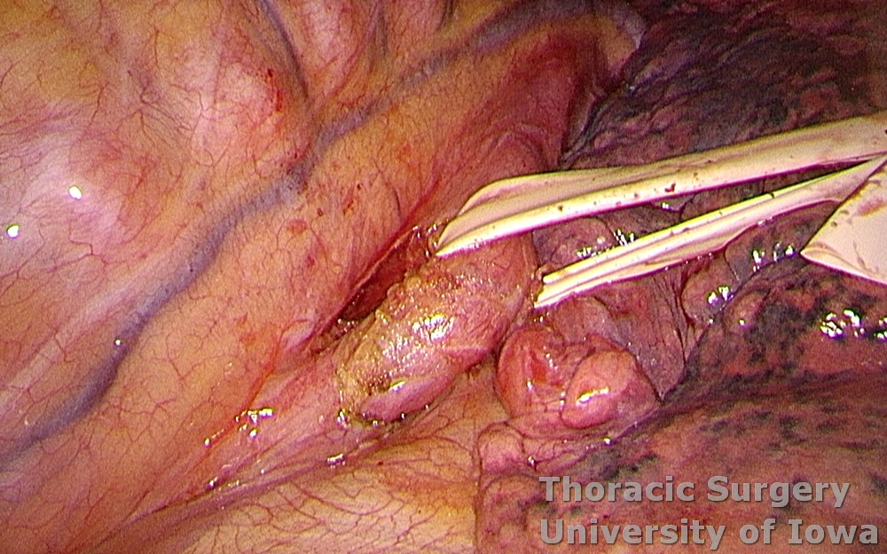 Esophagectomy for esophageal carcinoma thoracoscopic three incisions McKeown esophagus circumferentially dissected and encircled for retraction