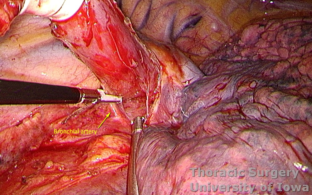Esophagectomy for esophageal carcinoma thoracoscopic three incisions McKeown esophagus circumferentially dissected bronchial artery divided with energy device Ligasure