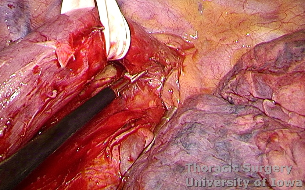 Esophagectomy for esophageal carcinoma thoracoscopic three-field McKeown esophagus dissected towards the  thoracic outlet after azygos vein divided with the stapler