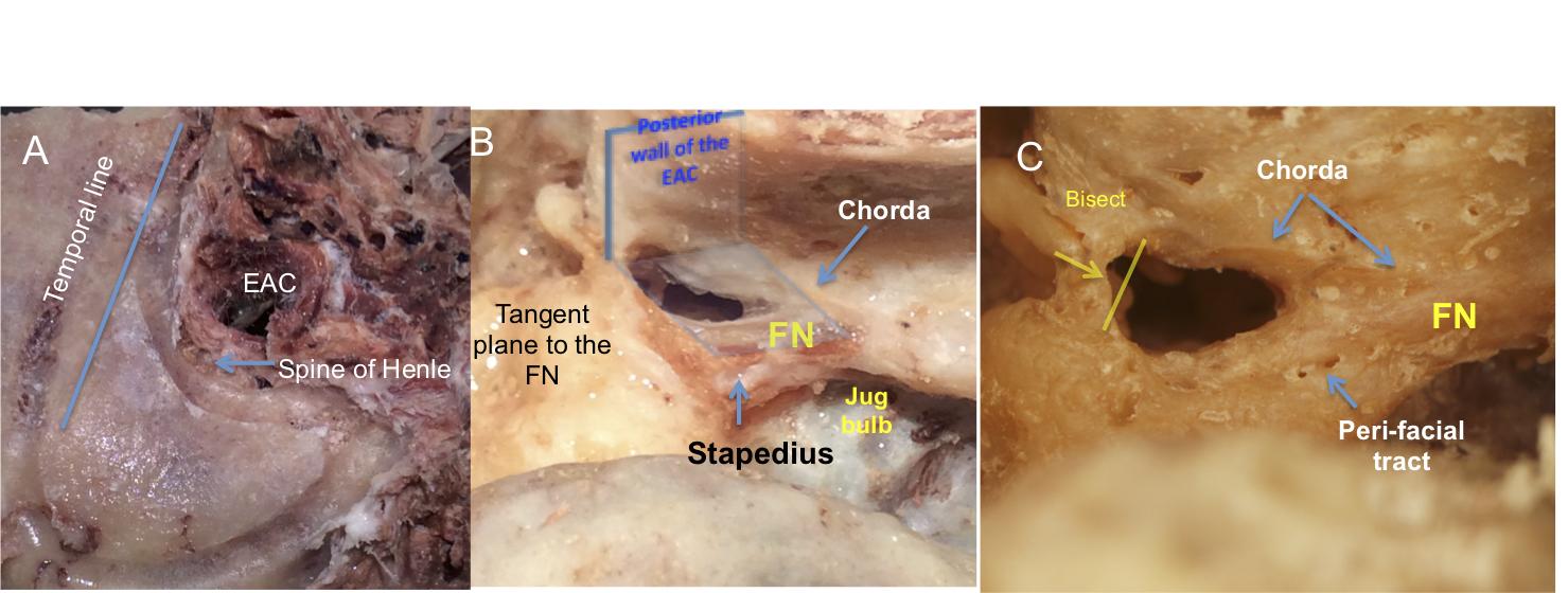 Temporal Bone Anatomy (Cadaveric Dissection)   Iowa Head and Neck ...