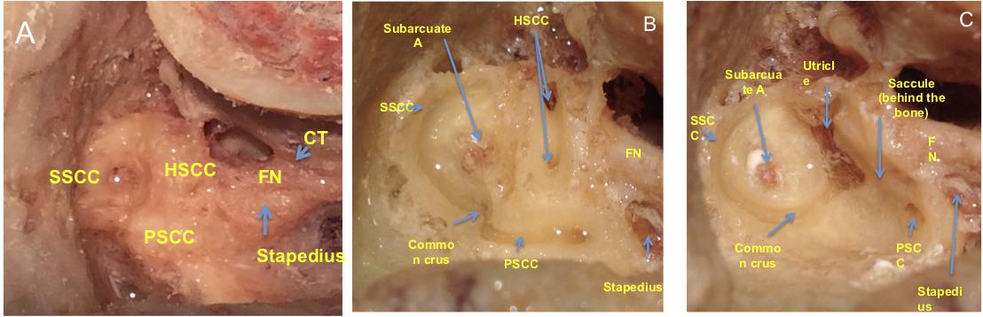 Temporal Bone Anatomy Cadaveric Dissection Iowa Head And Neck