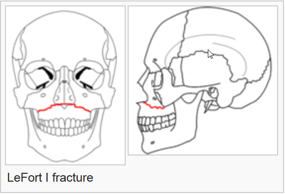 Facial Fracture Management Handbook - LeFort Fractures