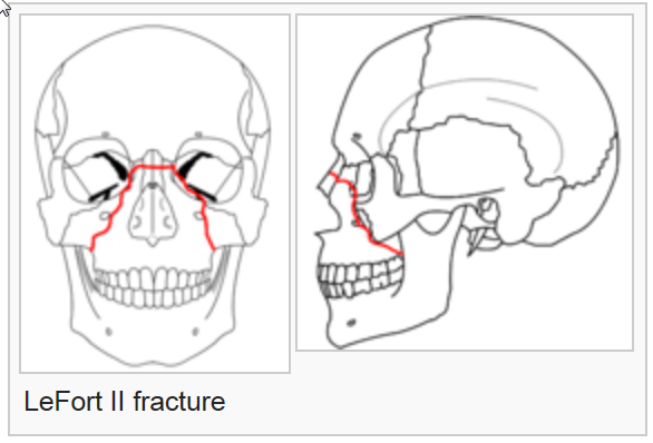 Facial Fracture Management Handbook - LeFort Fractures | Iowa Head
