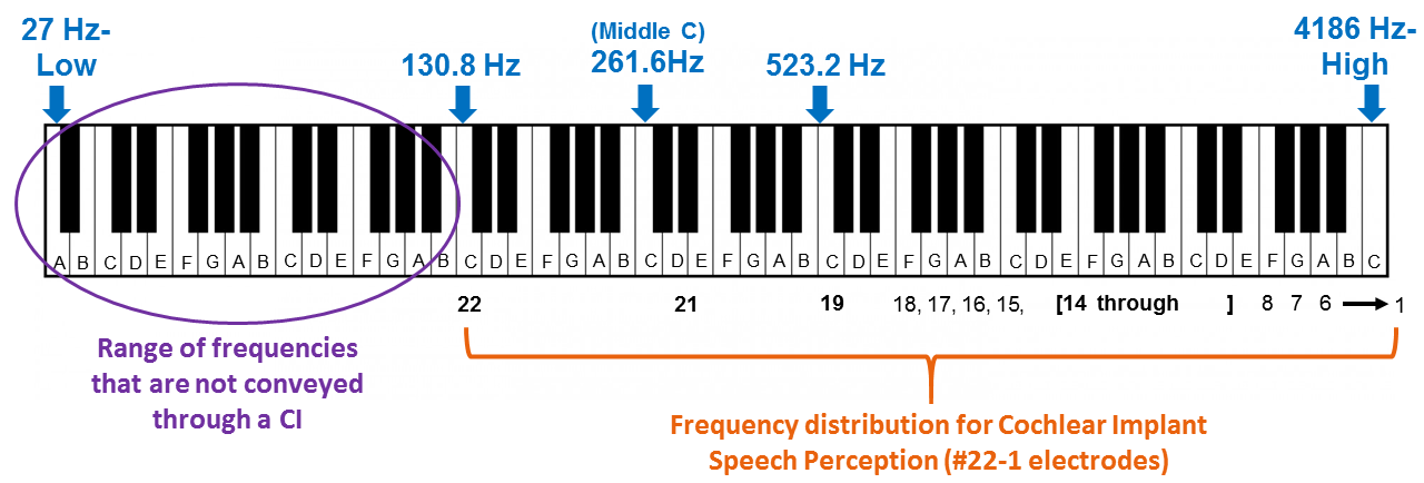 Low frequency with cochlear implant