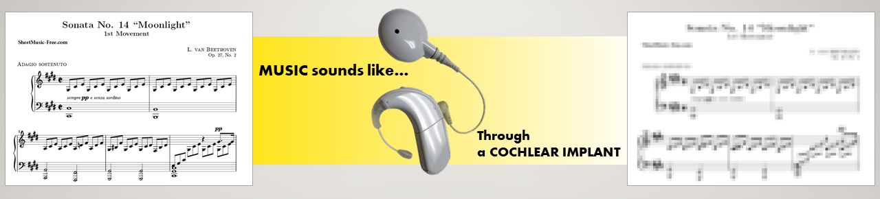Music through a cochlear implant
