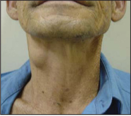 Saccular Cysts and Laryngoceles | Iowa Head and Neck Protocols