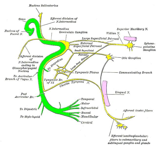 pathophysiology of trigeminal neuralgia pdf