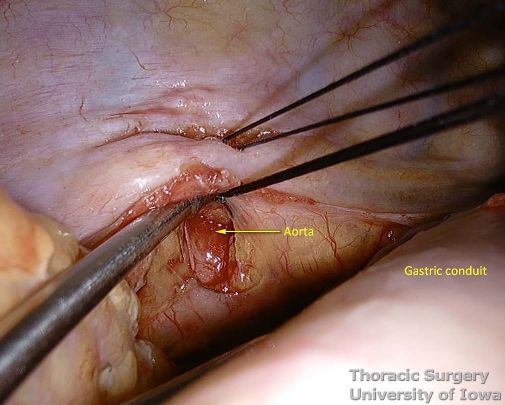 Thoracic duct ligation for chylothorax thoracoscopically VATS all  tissues between aorta spine and azygos vein are dissected