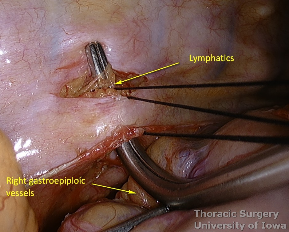 Thoracic duct ligation for chylothorax