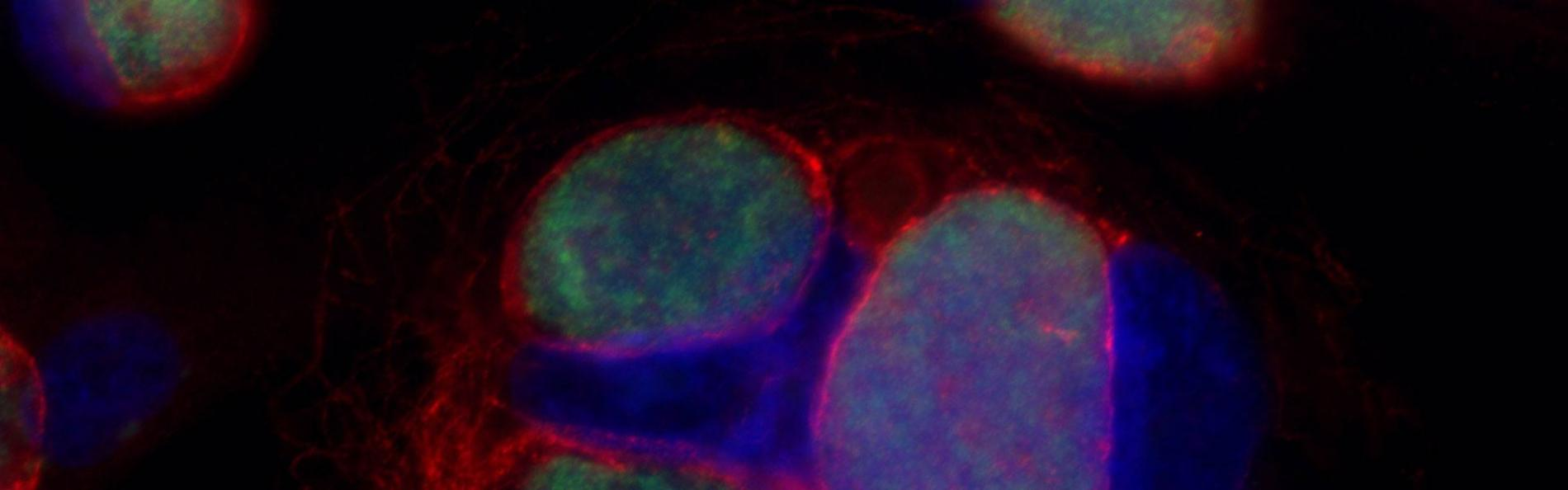 Immunofluorescence microscopy of primary human cervical cells infected with Chlamydia trachomatis from the Mary Weber lab