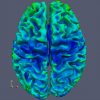 Figure (C): Cortical depth measurement, blue to red rainbow coloration, axial view. This is a visualization of an auto-calculated statistic.
