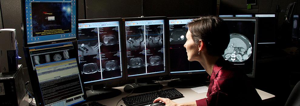 Research | Department of Neurology